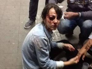 """RELEMBRANDO: A repórter da """"Folha"""", Giuliana Vallone, atingida com uma bala de borracha no olho, no dia 13.6.2013. No mesmo dia, o repórter-fotográfico da Futura Press, Sérgio Silva, também foi atingido no olho. Ele corre risco de ficar cego."""